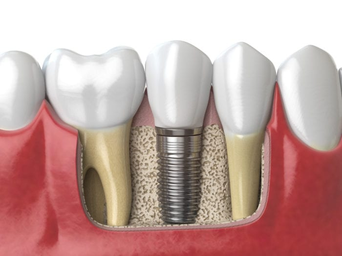 Dental Implants Plano TX