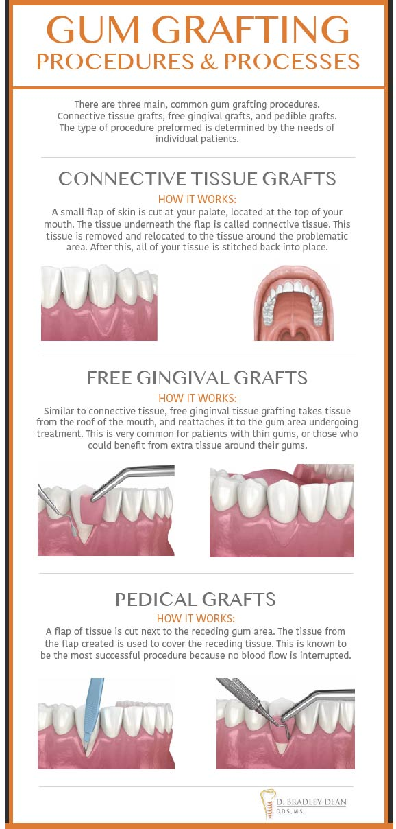 Gum Grafting Options infographic Plano, Texas