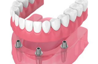 all-on-four dental implants in Plano Texas